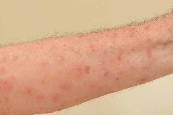 Alergia na Pele